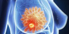 أورام غير قابلة للشفاء قد يتسبب بها علاج سرطان الثدي لاحقا…. تعرف على التفاصيل
